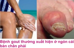 4 Benh gout
