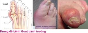 8 Benh gout 1