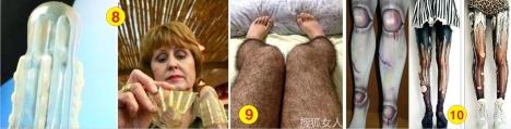 2 Chong de xom 4